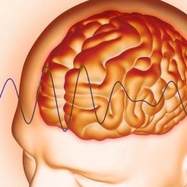 cerebro-onda